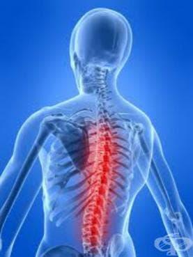 Увреждания на гръдните коренчета, некласифицирани другаде МКБ G54.3 - изображение