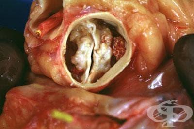 Увреждания на аортната клапа при болести, класифицирани другаде МКБ I39.1 - изображение