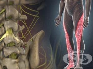 Увреждания на межпрешленните дискове в поясния и другите отдели на гръбначния стълб с радикулопатия МКБ M51.1 - изображение