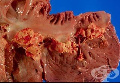 Туберкулоза на други уточнени органи МКБ A18.8 - изображение