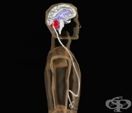 Вътречерепна хипотензия след шънтиране на мозъчните стомахчета МКБ G97.2 - изображение