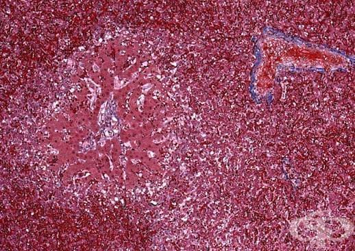 Венооклузивна болест на черния дроб МКБ K76.5 - изображение