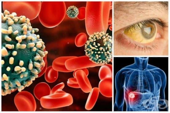 Вирусен хепатит МКБ B15-B19 - изображение