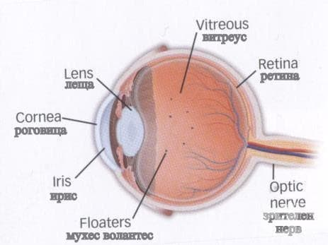 Болести на стъкловидното тяло МКБ H43 - изображение