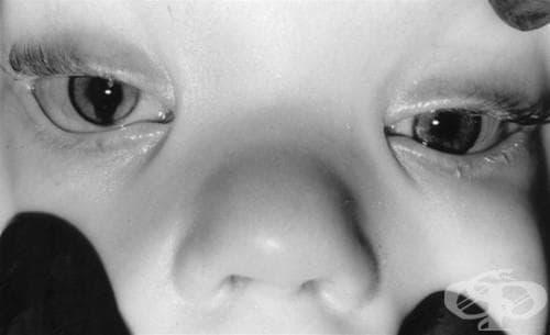 Вродена аномалия на окото, неуточнена МКБ Q15.9 - изображение