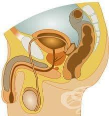 Възпалителни увреждания на мъжките полови органи, некласифицирани другаде МКБ N49 - изображение