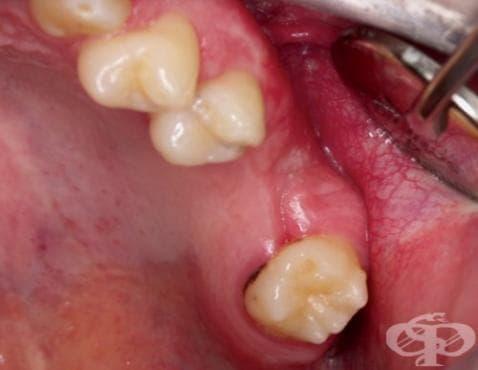 Възпалителни болести на челюстите МКБ K10.2 - изображение