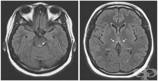 Енцефалопатия на Wernicke МКБ E51.2 - изображение