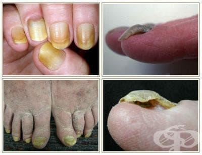 Синдром на жълтия нокът МКБ L60.5 - изображение