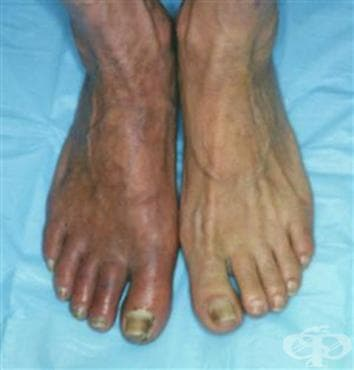 Други уточнени болести на периферните съдове МКБ I73.8 - изображение