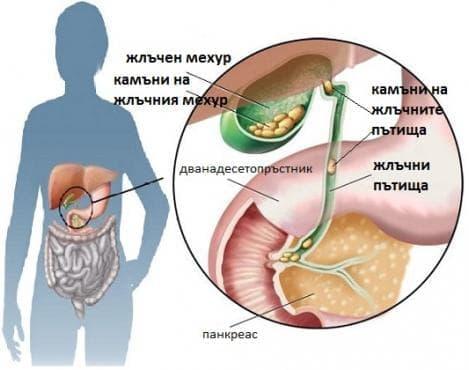 Жлъчнокаменна болест [холелитиаза] МКБ K80 - изображение