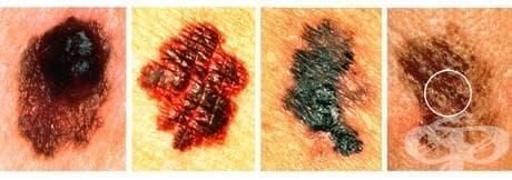 Злокачествен меланом на кожата МКБ C43 - изображение