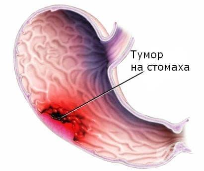 Тяло на стомаха МКБ C16.2 - изображение