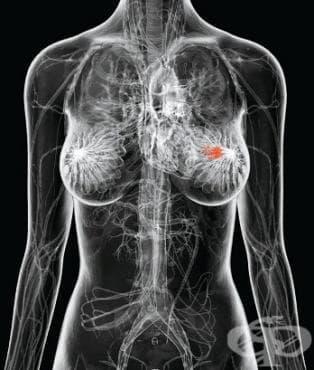 Млечна жлеза, неуточнена част МКБ C50.9 - изображение