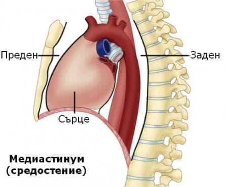 Злокачествено новообразувание на сърцето, медиастинума и плеврата МКБ C38 - изображение