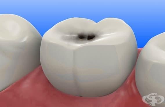 Зъбен кариес МКБ K02 - изображение