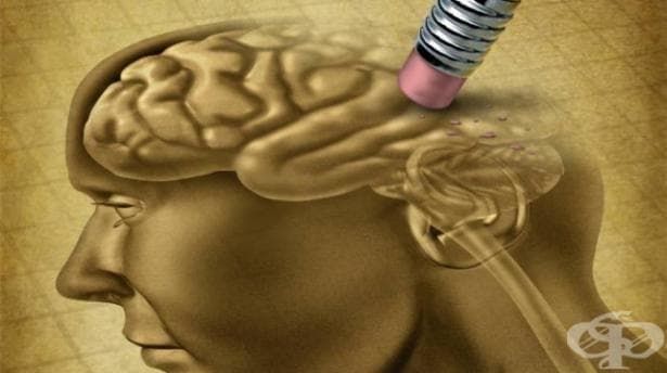 До 2050 г. 106 милиона души в света ще са болни от Алцхаймер - изображение