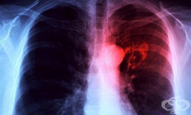 Днес отбелязваме Световния ден за борба с туберкулозата - изображение