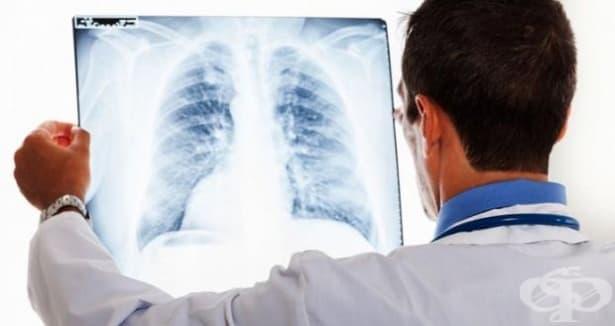 Стартира Националната информационна кампания за астма и ХОББ  - изображение