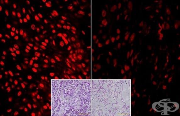 Лечение на рак с витамин С премина успешно клинични изследвания - изображение