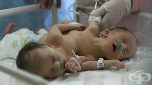 Отказват за втори път разделянето на сиамските близнаци от Сливен - изображение