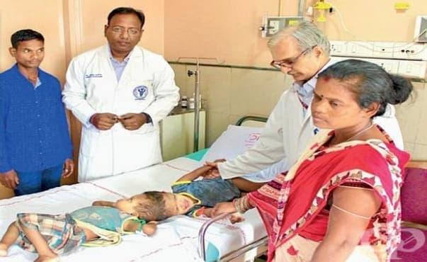 В Индия оперираха сиамски близнаци, сраснали в главата - изображение