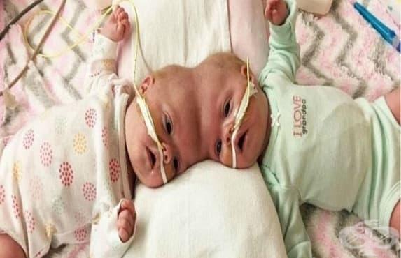 Американски хирурзи успешно разделиха сиамски близнаци със сраснали глави  - изображение