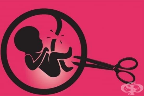 56 милиона аборта се извършват всяка година - изображение