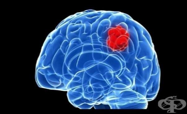 Създадоха модел на растящ мозъчен тумор в съд - изображение