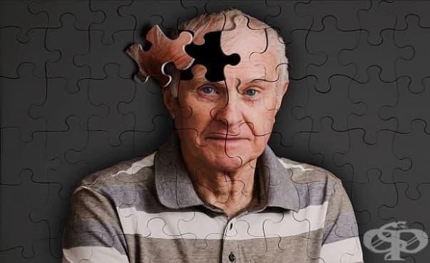 Ако се контролират рисковите фактори, болестта на Алцхаймер ще стои далеч - изображение