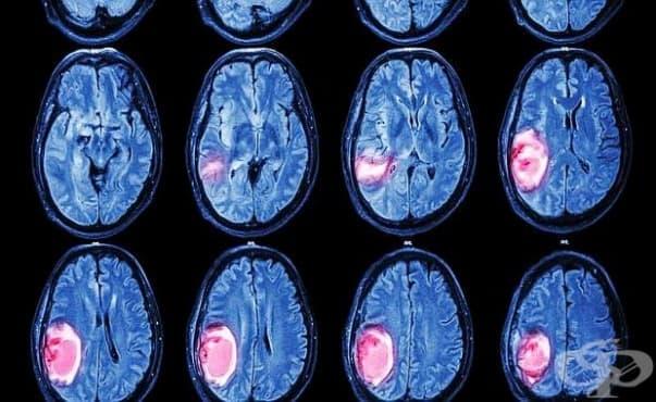 Изследователи установиха как да откриват мозъчни тумори чрез течни биопсии - изображение
