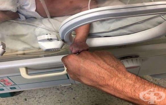 Японче, родено 268 г, оцеля и беше изписано живо и здраво от болницата - изображение