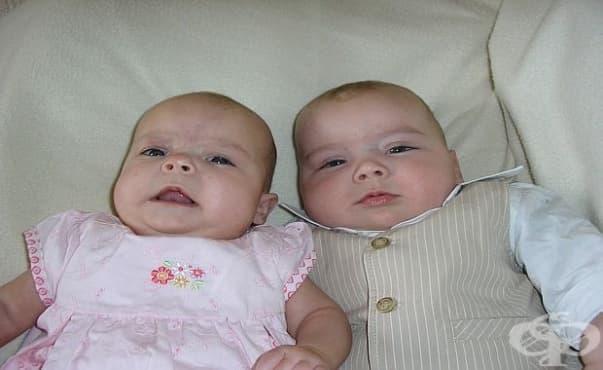 Изследователи идентифицираха близнаци рядък феномен - изображение