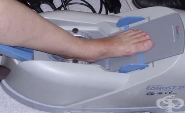 Ще има безплатни изследвания на костната плътност в Ловеч - изображение