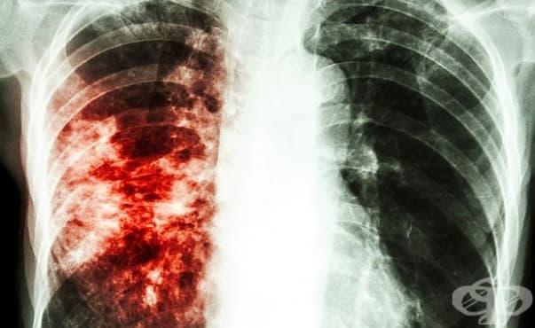 Случаите на туберкулоза намаляват в България - изображение