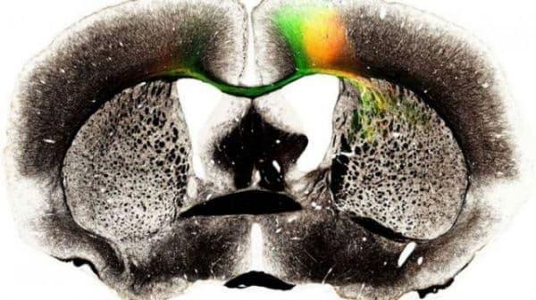 Екипът на проф. Нобутоши Ота запази жизнен 25 дни мозък, извън черепа на мишка - изображение