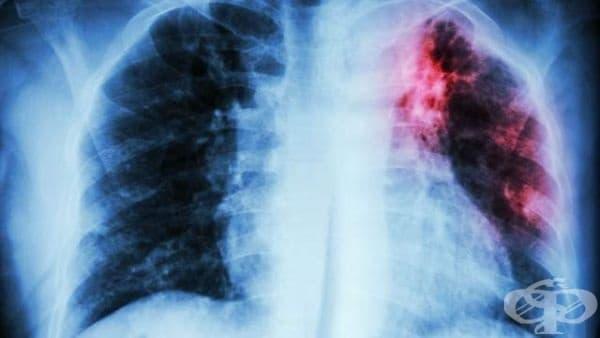 От 9 до 13 декември 2019-а в цялата страна се провеждат безплатни прегледи за туберкулоза - изображение