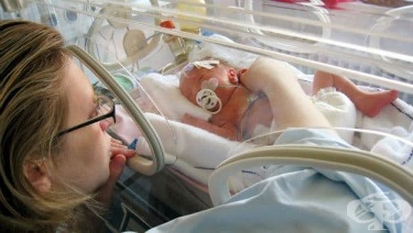 В УМБАЛ - Бургас спасиха 600-грамово бебе - изображение