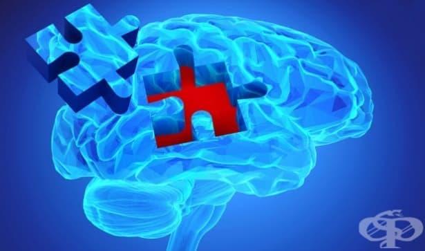 Съчетаването на ултразвук и имунотерапия е ефективно при Алцхаймер - изображение