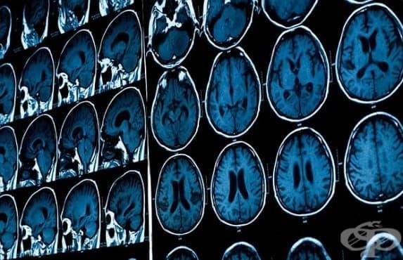 Болестта на Алцхаймер може да бъде заразна - изображение