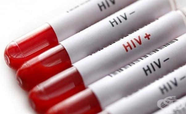 Само 31 на сто от българите биха общували с ХИВ позитивен - изображение