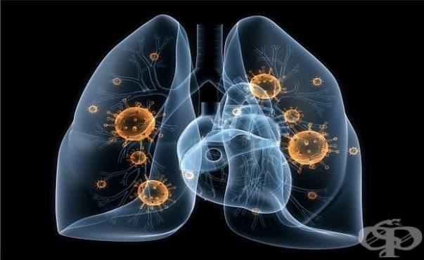 Откриха нови белодробни клетки, които провокират муковисцидозата - изображение