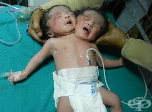 Двуглаво бебе се роди в Бангладеш - изображение