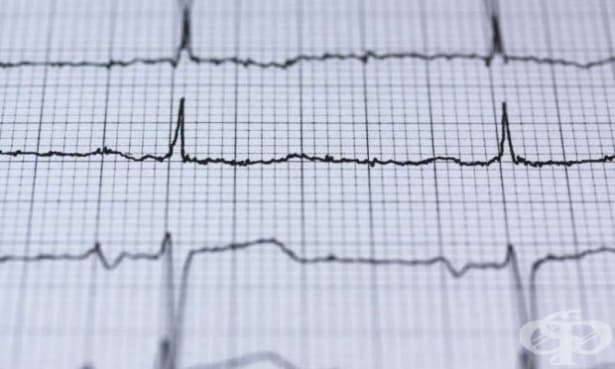 Кардиограмата ще помогне за диагностика на депресията - изображение