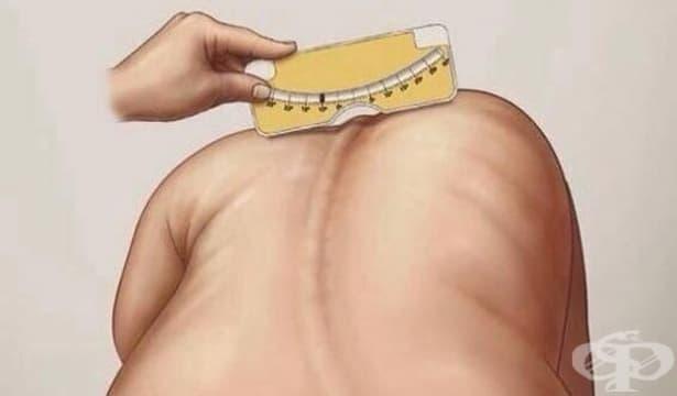 Тревожна е тенденцията по отношение на гръбначните изкривявания при децата - изображение