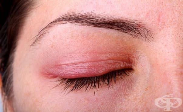 Офталмолог предупреждава: Има бум на херпес вирусни инфекции по очите - изображение
