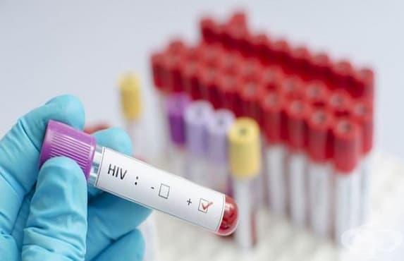 Нов случай на ХИВ в Бургас - изображение