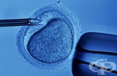 Над 20 са двойките с репродуктивни проблеми, подпомогнати от община Кърджали - изображение