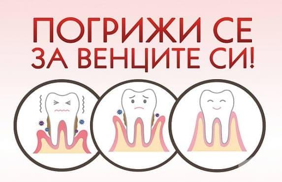 МУ – Варна провеждат кампания за безплатни прегледи Погрижи се за венците си - изображение