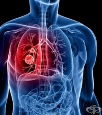 """Кампанията """"Седмица на отворени врати"""" за туберкулозата приключва на 14 декември - изображение"""